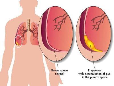 biến chứng của bệnh viêm phổi 3